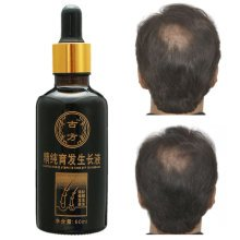 Shedding Proof Herbal Extract Liquid Hair Growth Anti Loss Activating Repair Men Women 60ml